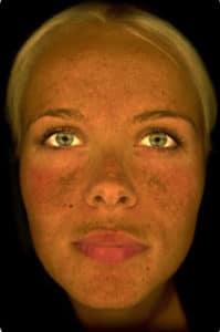 Observ - Outil d'analyse de la qualité de la peau
